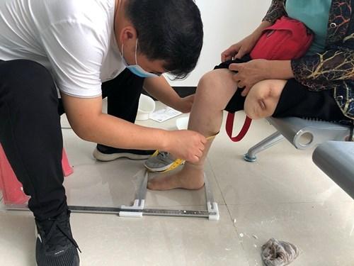 图为适配假肢技师为残疾人测量